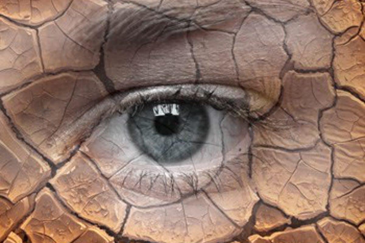 Dry Eye Treatment / Lipiflow